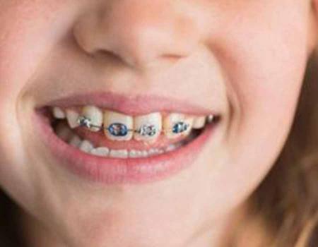 厦门正畸怎样预防牙龈萎缩