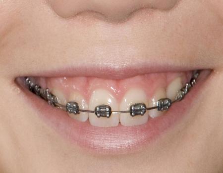如何避免厦门正畸矫正中的牙套脸