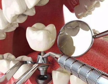 活动义齿和厦门种植牙该如何选择