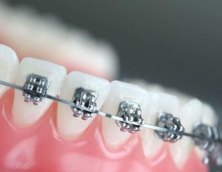 厦门牙齿矫正如何选择适合自己的矫治器