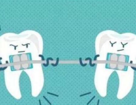 厦门牙齿矫正为什么要上下对称拔牙