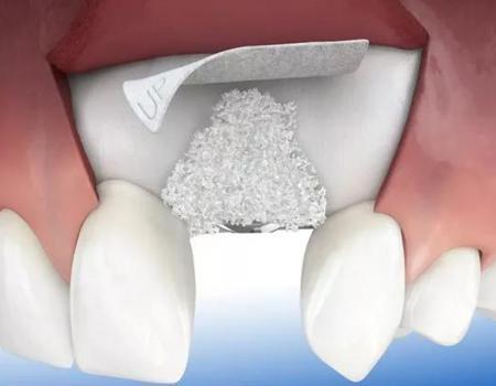 厦门牙齿种植为什么会那么贵