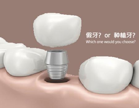 厦门牙齿种植为什么要植骨粉